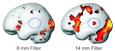 "How clear is our view of brain activity? : BCF researchers publish article in ""Human Brain Mapping"", demonstrating the large influence of filtering algorithms on results in brain imaging"