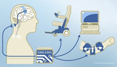 CorTec: University Spin-Off on its Way into the Future of Neurotechnology