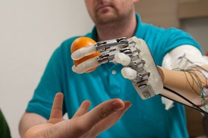 Prostheses with Sensory Feedback: Freiburg researchers have developed electrodes that help amputees to grasp at objects