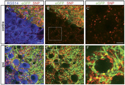 Invasion of the CA2 Region: How sprouting mossy fibers might contribute to epileptic activity