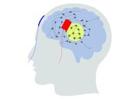 Simulating the effect of transcranial brain stimulation
